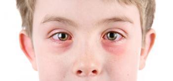 Как принимать диазолин при аллергии взрослым