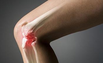 Комплекс гхк для суставов - Лечение Суставов