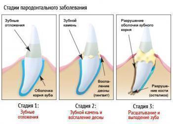 Холисал Дентал – инструкция по применению геля стоматологического, цена