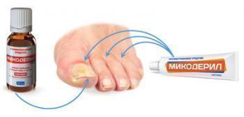Микодерил крем - инструкция по применению при лечении грибка ногтей, цена, аналоги