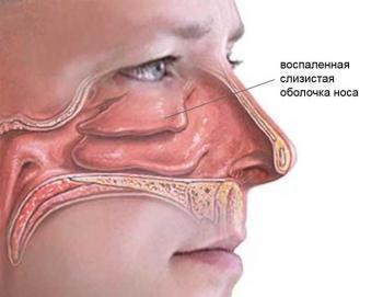 Капли для носа Снуп: показания и противопоказания, рекомендации по применению, побочные явления